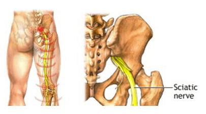 sciatica treatment logan