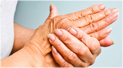 arthritis pain treatment logan